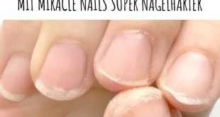 For a long time already plague and unhealthy fingernails plague the very snowy ...