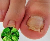 Nail fungus can be easily eliminated in 1 week!