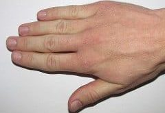 Dry, rough and chapped hands: home remedies for dry hands - home remedies ...