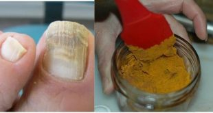 Nail fungus, referred to in the jargon as onychomycosis, can be found both on the fi ...