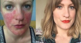 11 things that people want to tell you about rosacea