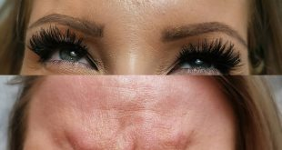 Botox between the eyebrows, a convenient way to reduce their wrinkles and tension