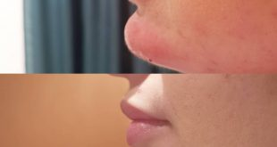 Here we have enlarged our chin with filler what a nice slut we have worked with ..