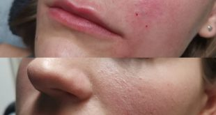 Here we were applied filler to the nasolabial folds and made a lip flip. In about 1