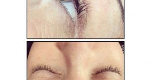 Before and after picture of my clients lash extention removal as you can see on