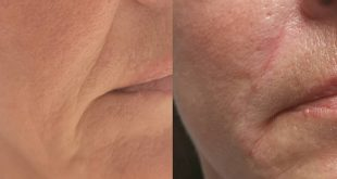 Here we can see clear results on a woman who wanted to reduce nasolabial folds